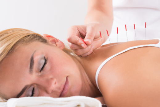 acupuncture to induce labor fast